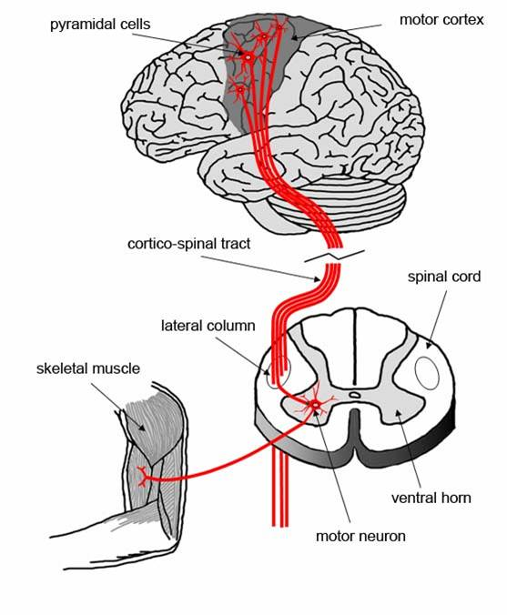 Mechanisms of neurodegeneration What is lower motor neuron disease